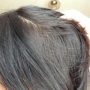 最近の髪と地肌のようす